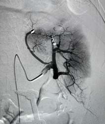 Angiogram shown renal artery after coil embolization procedure.