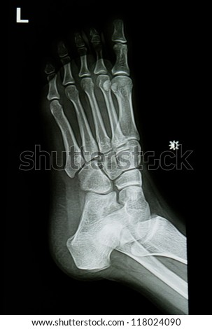 ankle and foot x-rays image