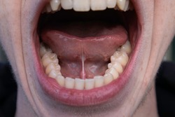 Ankyloglossia (Tongue Tied) in adult male mouth