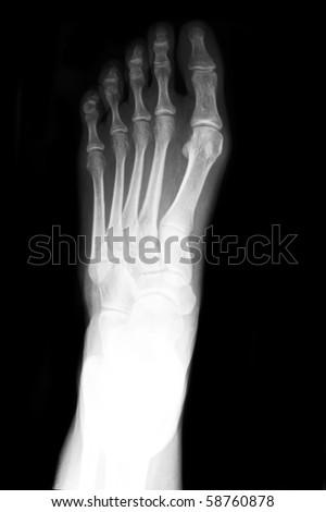 Anterior posterior xray of foot