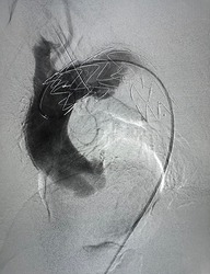 Aorta angiogram showed that stent graft were deployed to aortic arch to descending aorta during Thoracic endovascular aortic repair (TEVAR).
