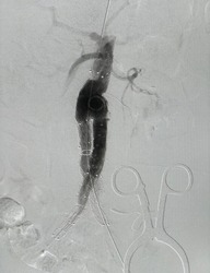 Aorta angiogram shown that stent graft were deployed to infrarenal abdominal aortic aneurysm and common iliac artery aneurysm in Endovascular Aortic Aneurysm Repair (EVAR) proceder