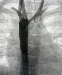 Aortogram shown aortic arch and descending aorta in congenital heart disease patient.