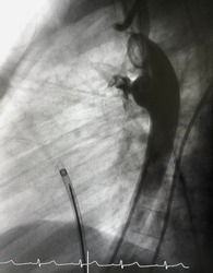 Aortography showed patent ductus arteriosus (PDA) was already closed by deployed PDA closure device via endovascular procedure.