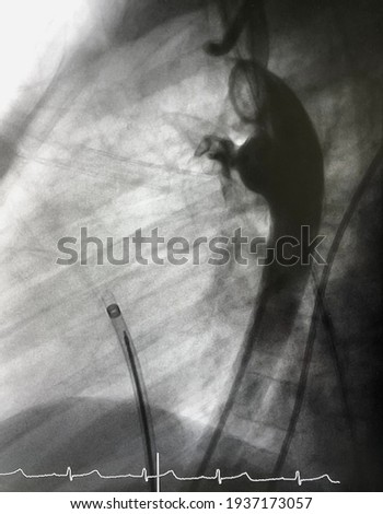Aortography showed patent ductus arteriosus (PDA) was already closed by deployed PDA closure device via endovascular procedure. Stock fotó ©