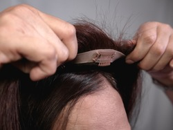 Applying a hair topper on top of a woman's natural hair and scalp. Covering hair thinning on the crown or the front area of head or adding volume. The front wig clip is visible.