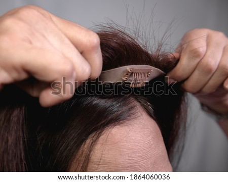Applying a hair topper on top of a woman's natural hair and scalp. Covering hair thinning on the crown or the front area of head or adding volume. The front wig clip is visible. ストックフォト ©