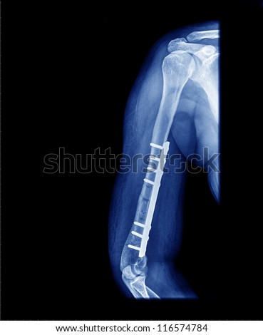 Arm  x-ray