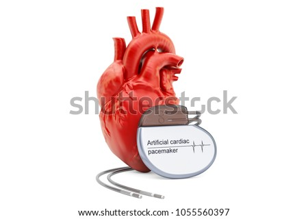Artificial cardiac pacemaker with human heart, 3D rendering isolated on white background