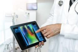 Artificial intelligence in smart healthcare hospital technology concept. Professional doctor use AI biomedical algorithm detect Pneumonia and cancer cell in digital filmless X-Rays process.