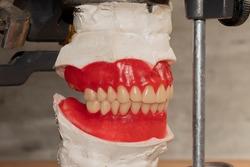 Artificial teeth arrangement in waxed up complete dentures