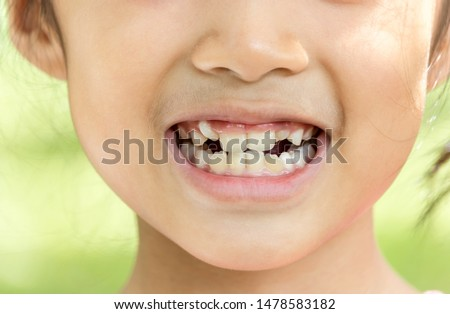 asian child smile and show her crowding tooth Stockfoto ©