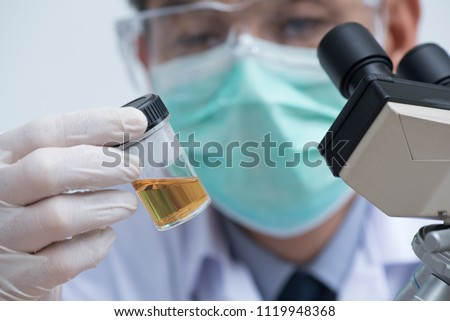 Asian doctor or technician looking urine sample in bottle prepared for urine examination with microscope in hospital  laboratory, microbiology research