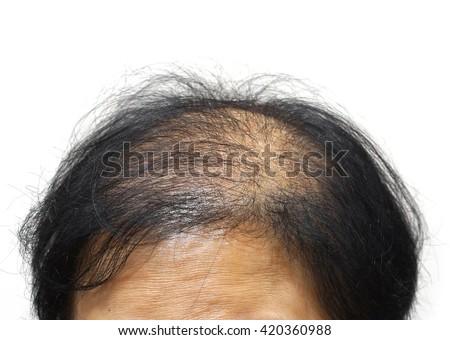 Asian female head with hair loss