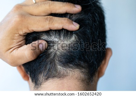 Asian male head with thinning hair or alopecia