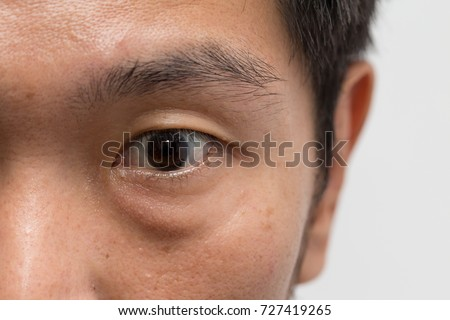 asian male man face oily skin with big eye bag at the left eye #727419265
