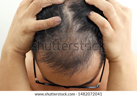 Asian man having serious hair loss problem. Male alopecia or hair loss concept.