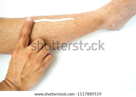Asian man use his fingers to apply white cream on his leg #1117889519