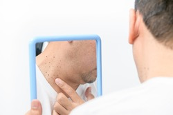 Asian middle man looks in the mirror and point to Skin Tags or Acrochordon on neck isolated on white background. Health care concept