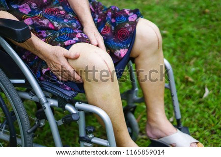 Asian senior or elderly old lady woman patient show her scar surgical total knee joint replacement surgery on wheelchair in park : healthy strong medical.
