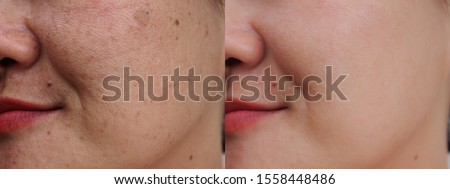 Asian woman face before and after dark spot melasma facial treatment. Problem skincare skincare and health concept.