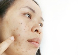 Asian woman have Scars and dark spots.The use of chemicals from cosmetics.Make up I used to stop acne on the face,black spots are very harmful to health.In the white background.