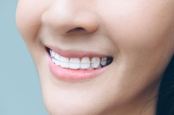 Asian woman wareing orthodontic retainers.Teeth retaining tools after braces .