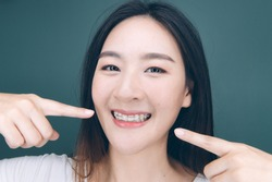 Asian woman wareing orthodontic retainers.Teeth retaining tools after braces . Pointing her mouth.