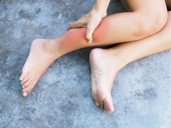 Asian women suffering from leg pain swollen and inflamed legs or ankle sprain