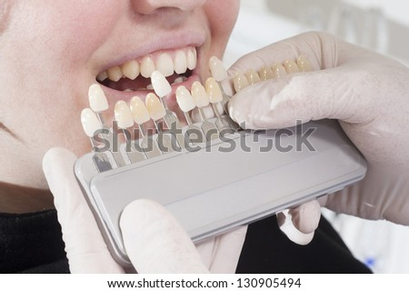 at the dentist choose white of teeth and finish prothesis