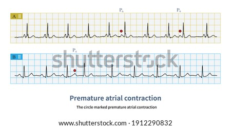 Atrial premature contractions are premature atrial P waves, usually accompanied by incomplete compensatory pause. Stock fotó ©