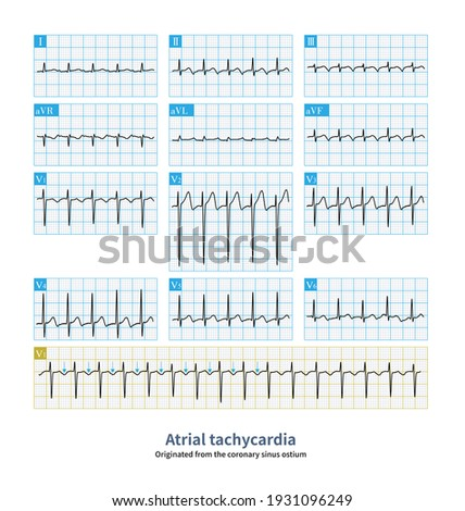 Atrial tachycardia originated from the ostium of coronary sinus, with inverted P wave in inferior lead, and positive-negative biphasic or negative P wave in V1 lead. Stock fotó ©