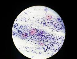 Atypical Squamous Cell of  Undetermined Significance cytology specimen conventional pap smear view in microscopy