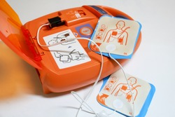 Automated External Defibrillator with pads on display. It is a portable electronic device that automatically diagnoses the life-threatening cardiac arrhythmias.