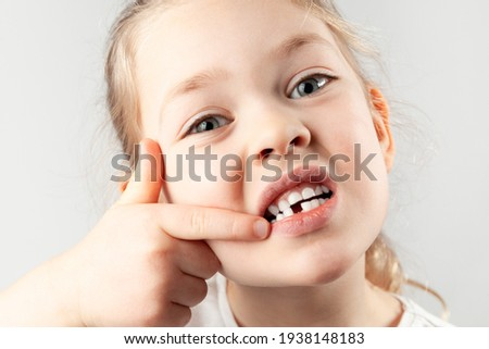 Baby tooth fell out. Portrait of small girl with a missing first tooth. Stock photo ©