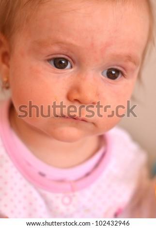 baby with rash - stock photo