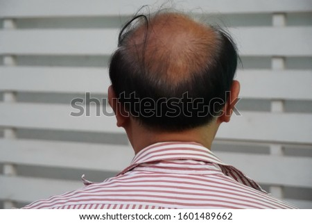 Back of bald head of Asian man with grey hair appearing also , selective focused and blurred background.