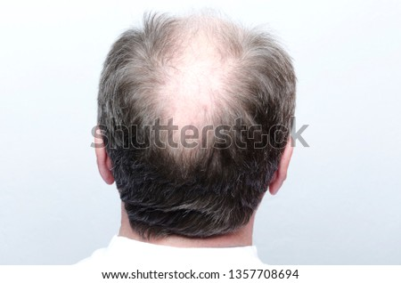 Back of male bald head.Concept of baldness