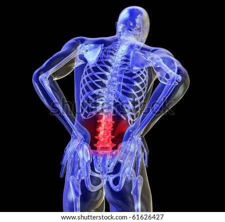 Back Pain, Backache