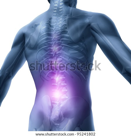 Back problems and human backache pain as an upper torso body skeleton showing the spine and vertebral column in highlight as a medical health care concept for spinal surgery and therapy on white.