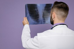 Back rear view of young bearded doctor man in medical gown stethoscope hold X-ray of lungs fluorography roentgen isolated on violet background studio. Healthcare personnel health medicine concept