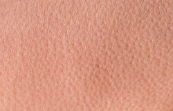 background of a pink skin texture of a man covered with pores and small goosebumps