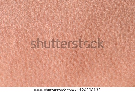 background of a pink skin texture of a man covered with pores and small goosebumps #1126306133