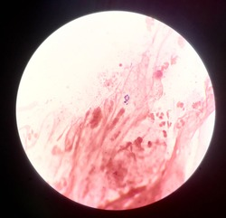 Bacteria cells in Gram stain.