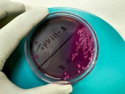 Bacteria colony of Escherichia coli (E.coli) in macconkey agar culture media plate