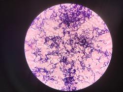Bacteria in Gram stain.Gram positive cocci in chain.