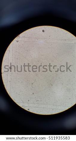 Bacteria in urine analysis #511935583