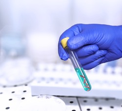 Bacteria test on laboratory test tube in the analyst's hand in a plastic glove