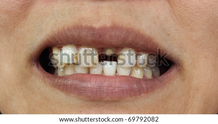 Bad teeth during treat to wait for fasten dentures - stock photo