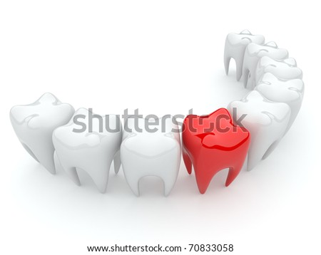 Bad tooth. 3D illustration isolated. stomatology